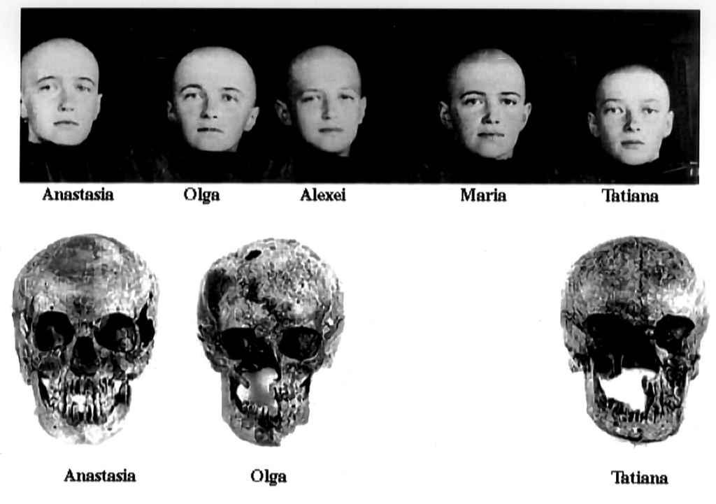 Tentative d'identification des crânes des enfants du tsar Nicolas II, exécutés par les Bolchéviques.