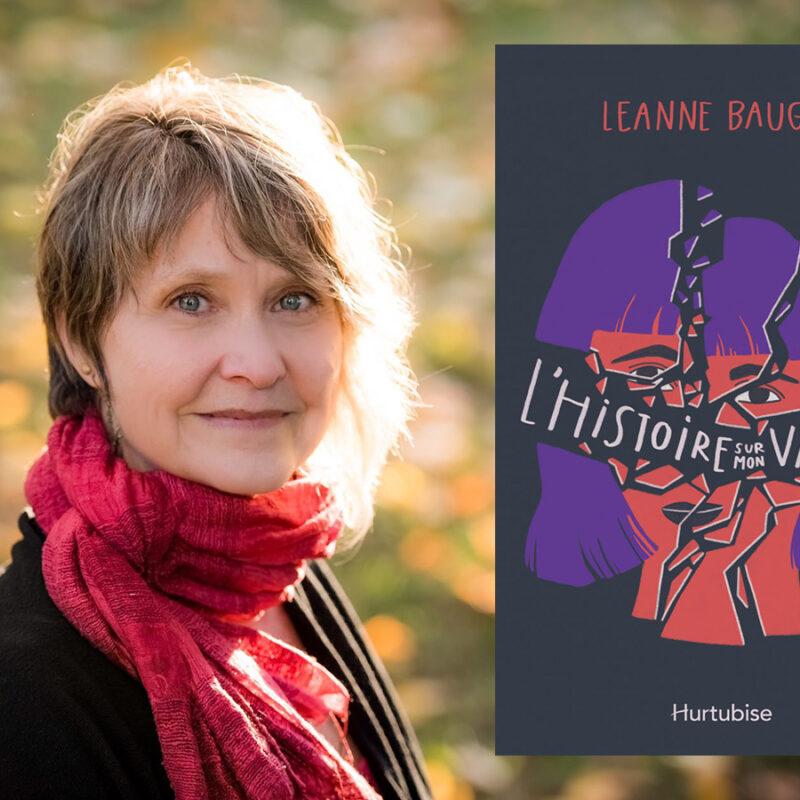 ado défigurée, Leanne Baugh, L'histoire sur mon visage